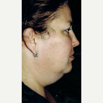 25-34 year old woman treated with Facelift before 3272027