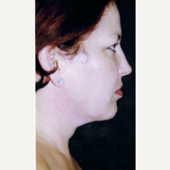 25-34 year old woman treated with Facelift after 3272027