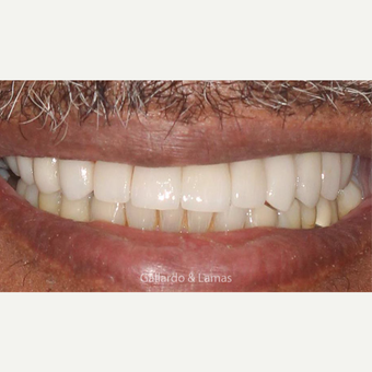 55-64 year old man treated with All-on-4 Dental Implants after 3258930