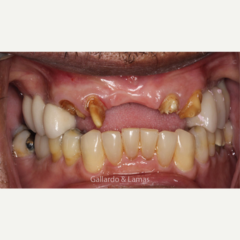 55-64 year old man treated with All-on-4 Dental Implants before 3258930
