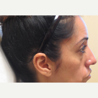 35-44 year old woman treated with Restylane under the eyes before 3381414