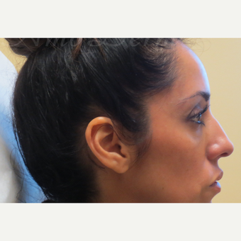 35-44 year old woman treated with Restylane under the eyes after 3381414