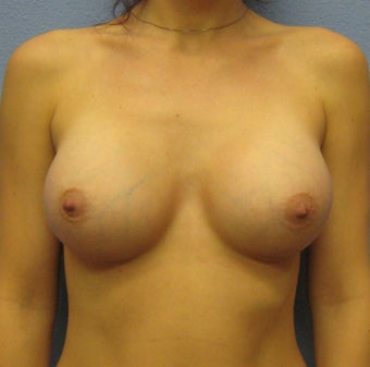 Breast Augmentation, Breast Implants after 1389454