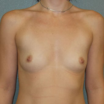 Breast Augmentation, Breast Implants before 1389454