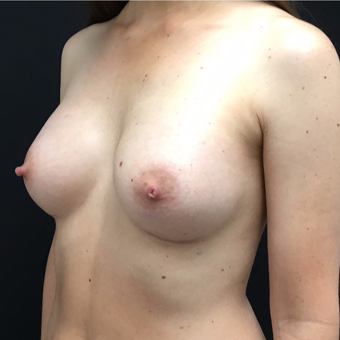 35-44 year old woman treated with Breast Augmentation after 3493847