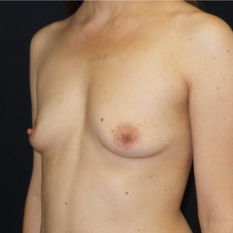 35-44 year old woman treated with Breast Augmentation before 3493847
