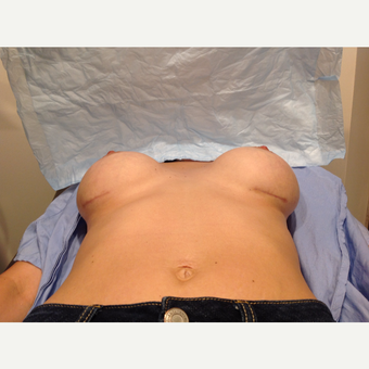 25-34 year old woman treated with Breast Implants after 3075241