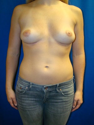 Breast Implant Removal after 1352849