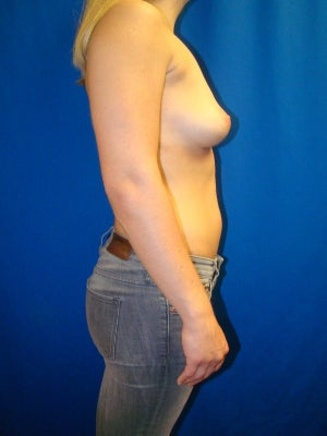 Breast Implant Removal 1352849