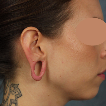 Gauge earlobe repair for extreme size gauges with earlobe lift and reconstruction before 3623497