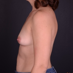 25-34 year old woman treated with Mentor Breast Implants before 3240149