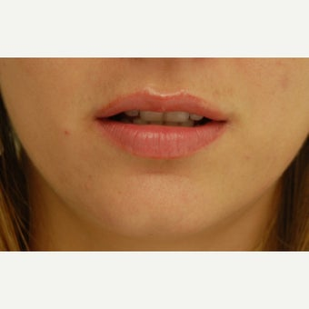 18-24 year old woman treated with Lip Augmentation after 1606489