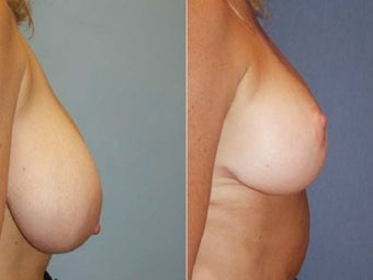 48yo Dr Mark Prysi performed Breast Reduction before 1245709