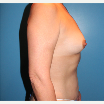 35-44 year old woman treated with Breast Augmentation before 3806090