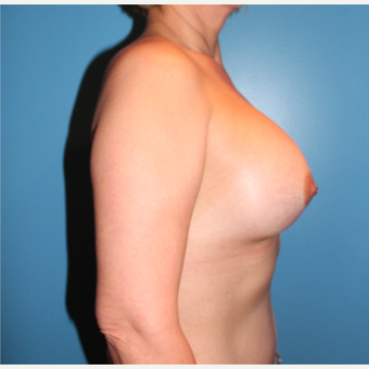35-44 year old woman treated with Breast Augmentation after 3806090