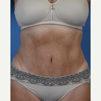 55-64 year old woman treated with Tummy Tuck after 3537442