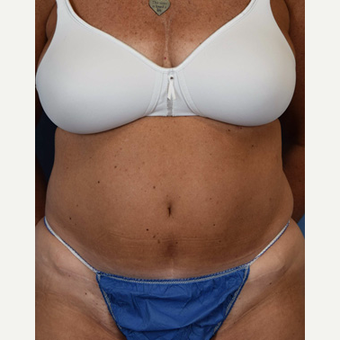 55-64 year old woman treated with Tummy Tuck before 3537442