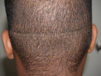 Hair Transplant - FUE 350 grafts before 253467