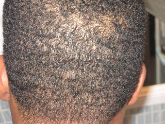 Hair Transplant - FUE 350 grafts after 253467