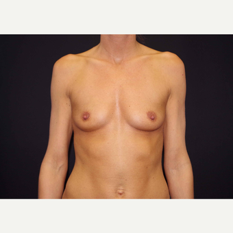 25-34 year old woman treated with Breast Implants before 3441705