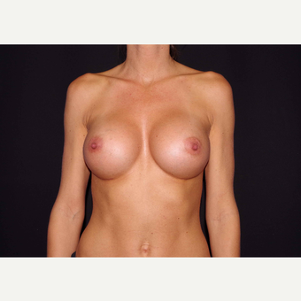 25-34 year old woman treated with Breast Implants after 3441705