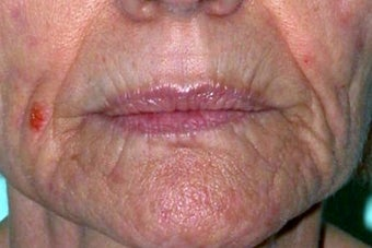 Dermabrasion on lips before 1191765