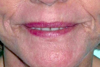 Dermabrasion on lips after 1191765