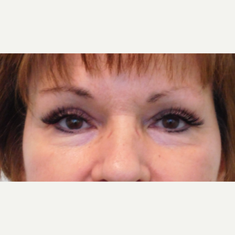 45-54 year old woman treated with Brow Lift after 3077229