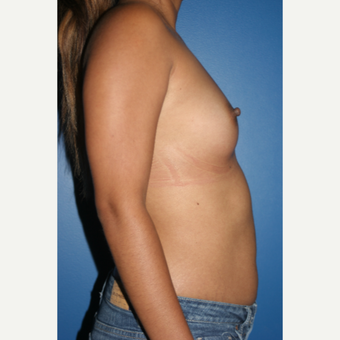 25-34 year old woman treated with Breast Augmentation before 3788737