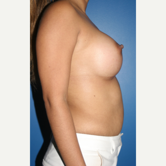 25-34 year old woman treated with Breast Augmentation after 3788737