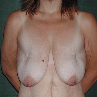35-44 year old woman treated with Breast Augmentation before 3168001