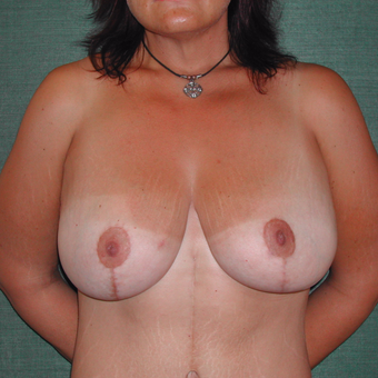 35-44 year old woman treated with Breast Augmentation after 3168001