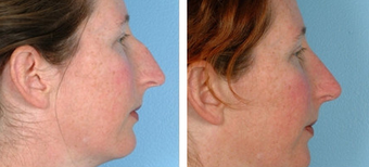 Functional Rhinoplasty before 1208314