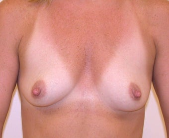 Breasts before and after breast augmentation with 350cc breast implants before 1163542