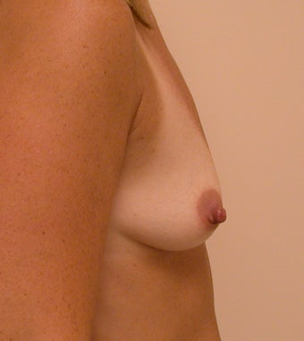 Breasts before and after breast augmentation with 350cc breast implants 1163542