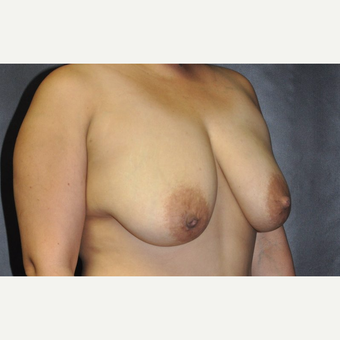 35-44 year old woman treated with Breast Lift before 3246211