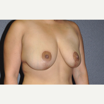 35-44 year old woman treated with Breast Lift after 3246211