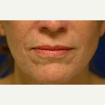 45-54 year old woman treated with Phenol Peel