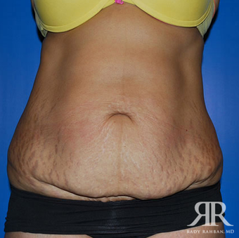 Tummy Tuck before 944812
