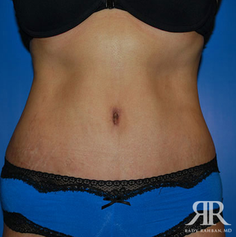 Tummy Tuck after 944812