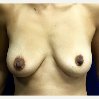 35-44 year old woman treated with Breast Augmentation before 3164731