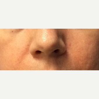 45-54 year old woman treated with Wrinkle Treatment after 3540106