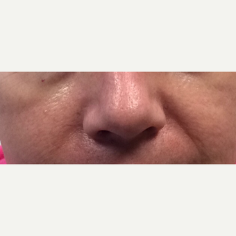 45-54 year old woman treated with Wrinkle Treatment before 3540106