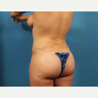 25-34 year old woman treated with Liposuction after 3205223