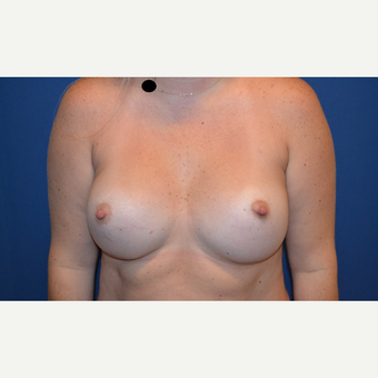 25-34 year old woman treated with Breast Augmentation after 3423489