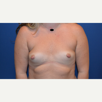 25-34 year old woman treated with Breast Augmentation before 3423489