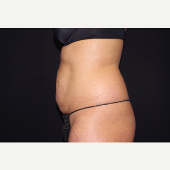 35-44 year old woman treated with Liposuction and Abdominoplasty before 3644655