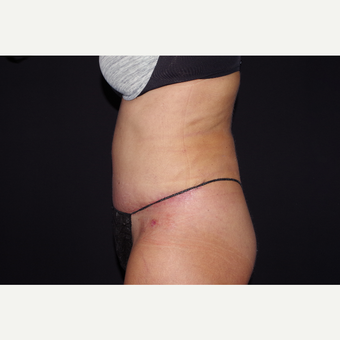 35-44 year old woman treated with Liposuction and Abdominoplasty after 3644655