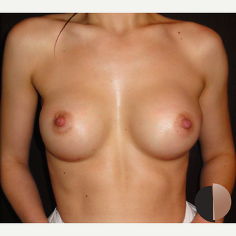 25-34 year old woman treated with Breast Augmentation after 2503639