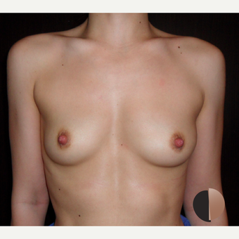 25-34 year old woman treated with Breast Augmentation before 2503639